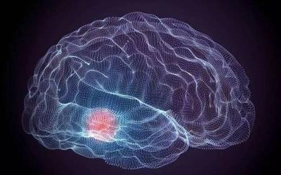 陳根:研究開發深度腦刺激設備,持久記錄大腦活動
